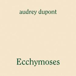 Ecchymoses